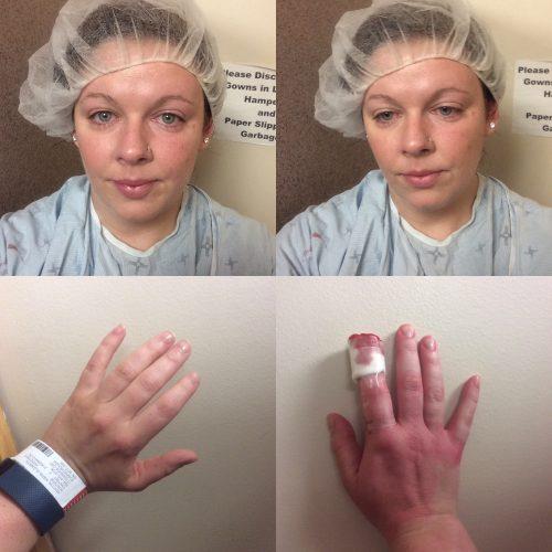 Surgery 2017